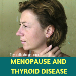 Menopause And Thyroid Disease